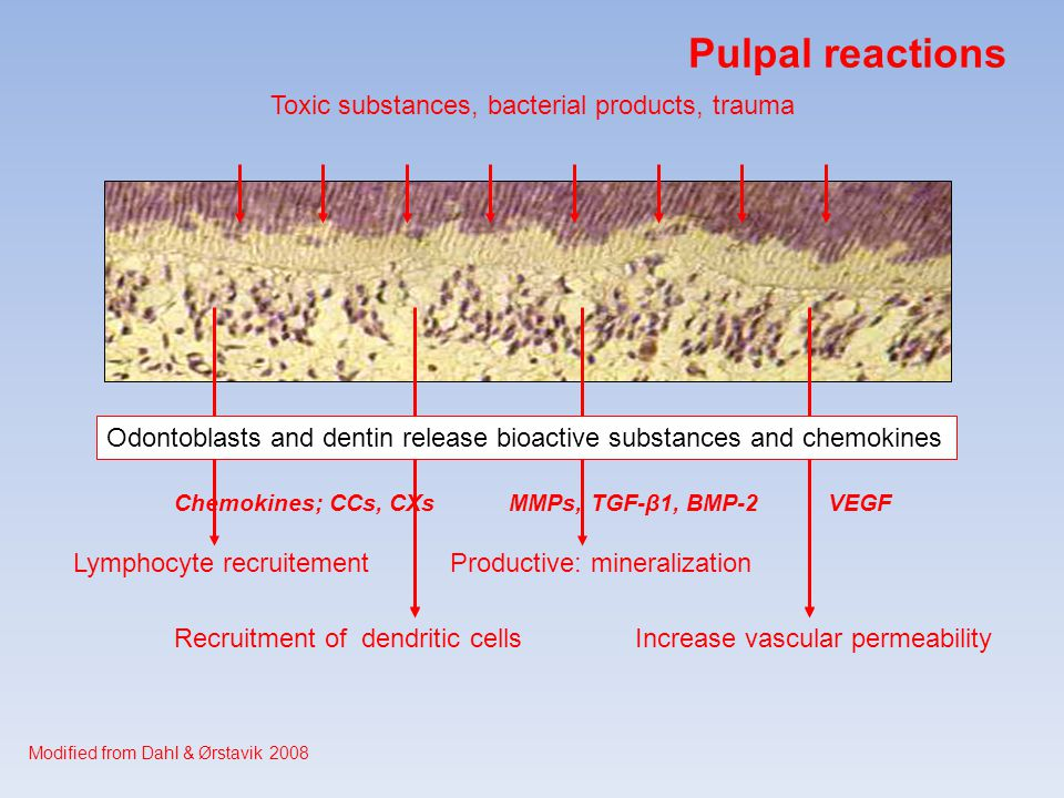 Pulpal reactions Toxic substances, bacterial products, trauma