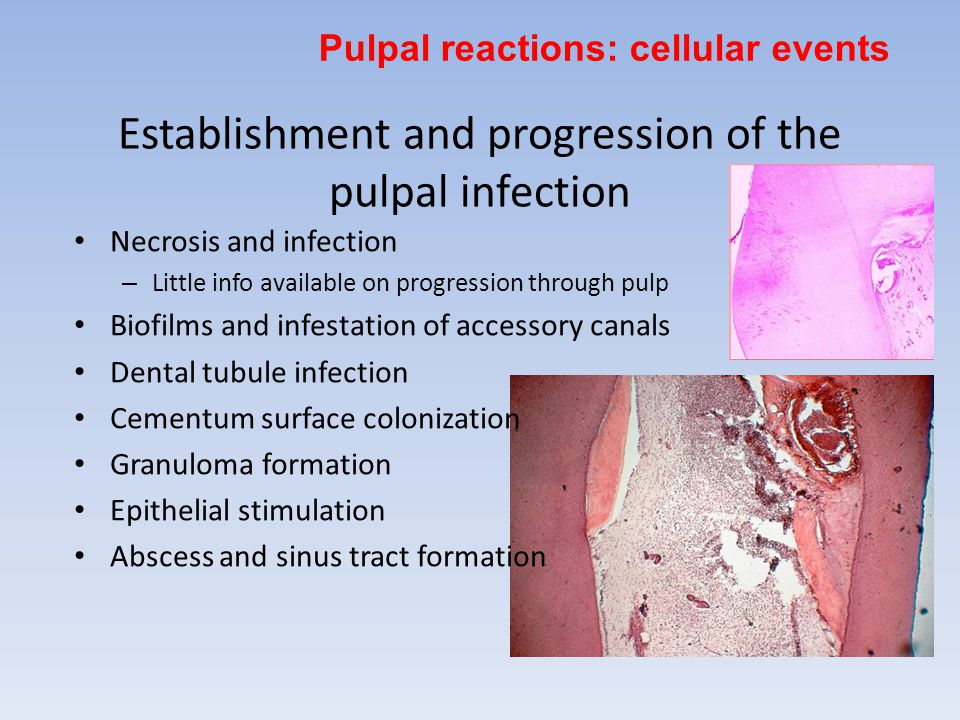 Establishment and progression of the pulpal infection