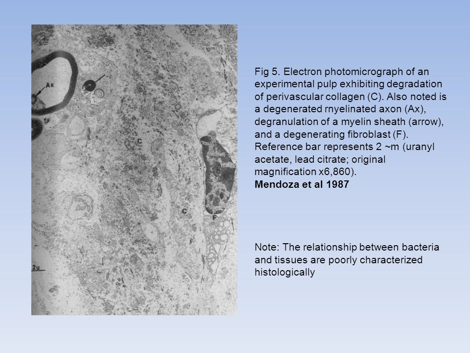 Fig 5. Electron photomicrograph of an experimental pulp exhibiting degradation of perivascular collagen (C). Also noted is a degenerated rnyelinated axon (Ax), degranulation of a myelin sheath (arrow), and a degenerating fibroblast (F). Reference bar represents 2 ~m (uranyl