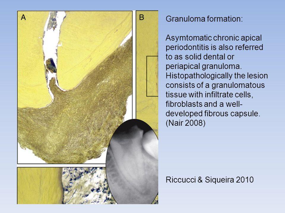 Granuloma formation: