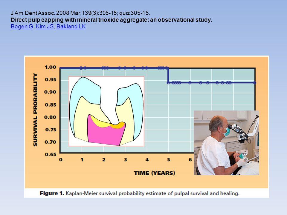 J Am Dent Assoc. 2008 Mar;139(3):305-15; quiz 305-15.