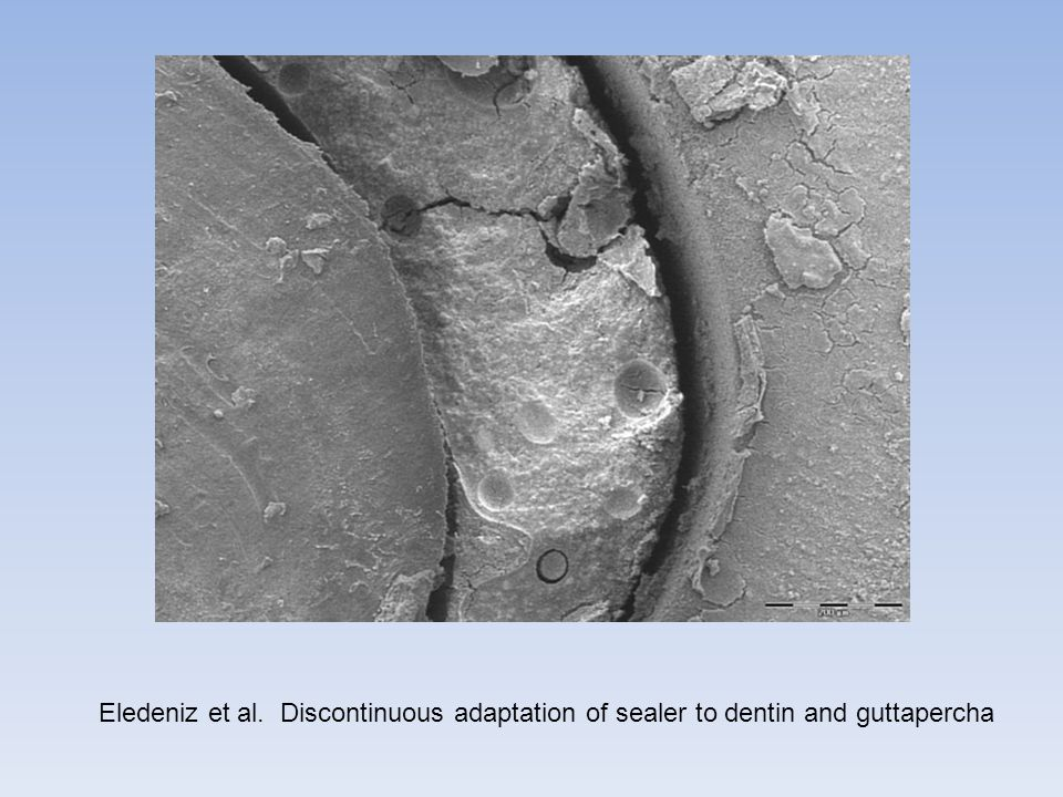 Eledeniz et al. Discontinuous adaptation of sealer to dentin and guttapercha