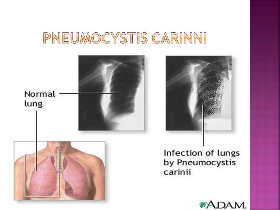 Pneumocystis carinni