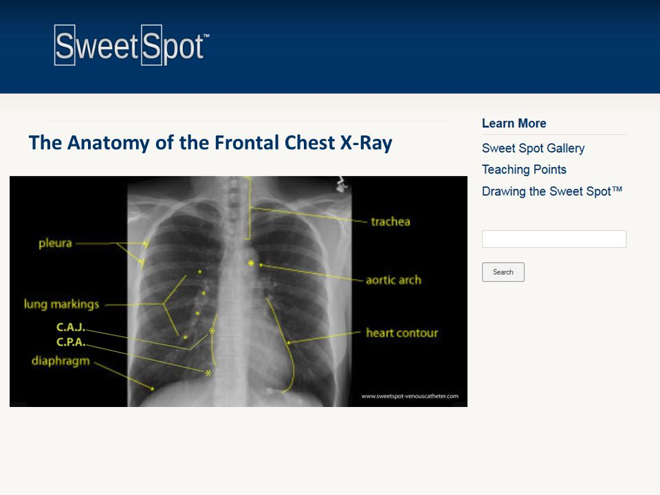 The Anatomy of the Frontal Chest X-Ray