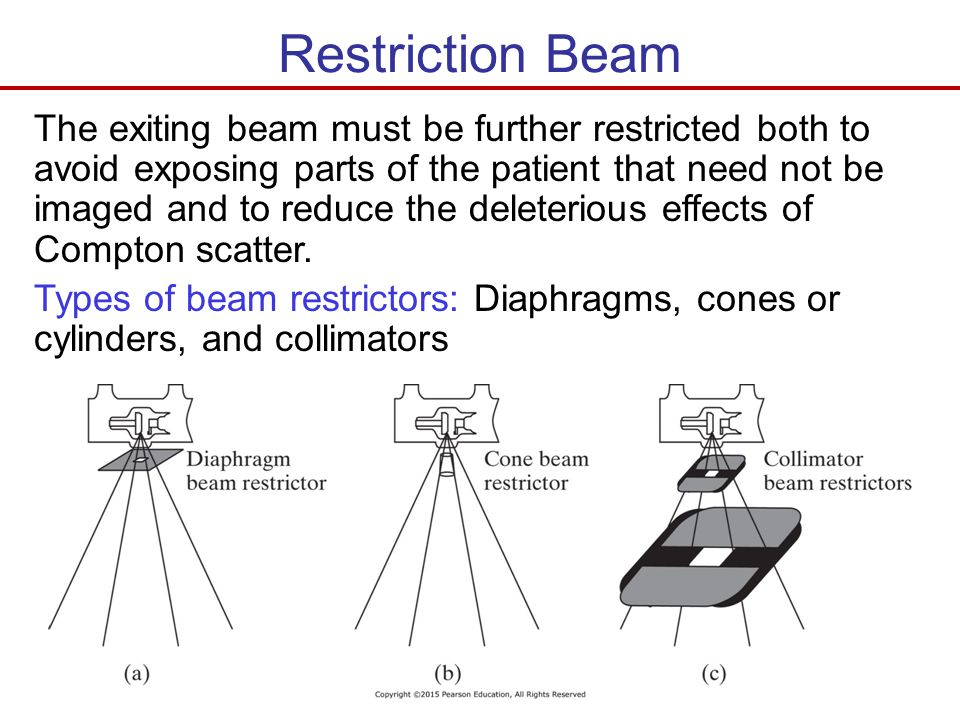 Restriction Beam