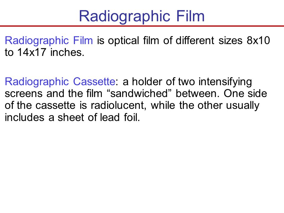 Radiographic Film Radiographic Film is optical film of different sizes 8x10 to 14x17 inches.
