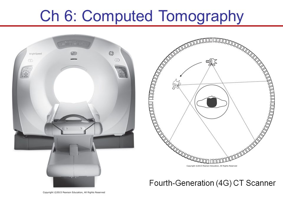 Ch 6: Computed Tomography