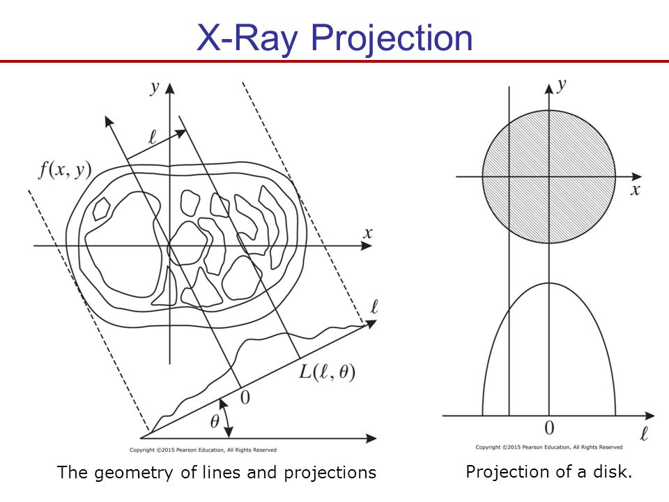 X-Ray Projection The geometry of lines and projections