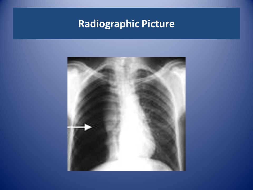 Radiographic Picture