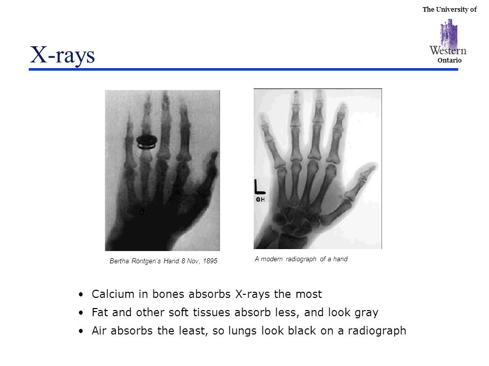 X-rays Calcium in bones absorbs X-rays the most
