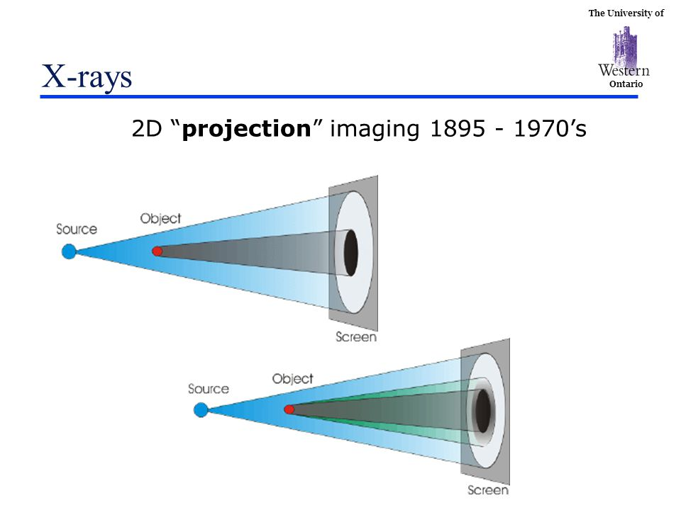 X-rays 2D projection imaging 1895 - 1970's