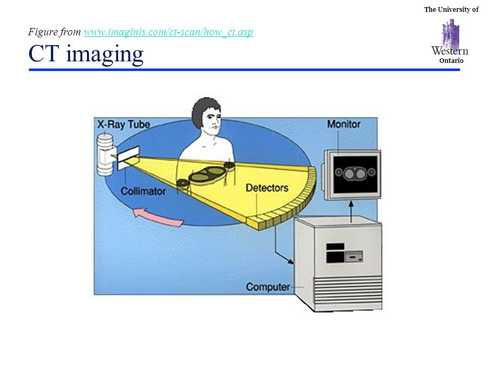 Figure from www.imaginis.com/ct-scan/how_ct.asp CT imaging