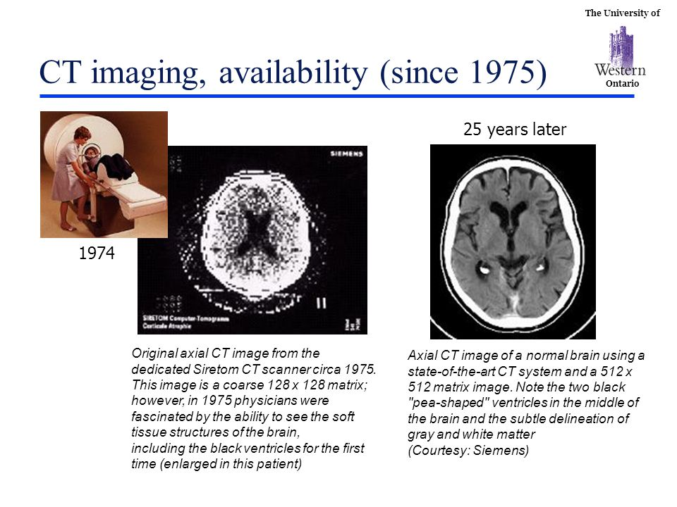 CT imaging, availability (since 1975)