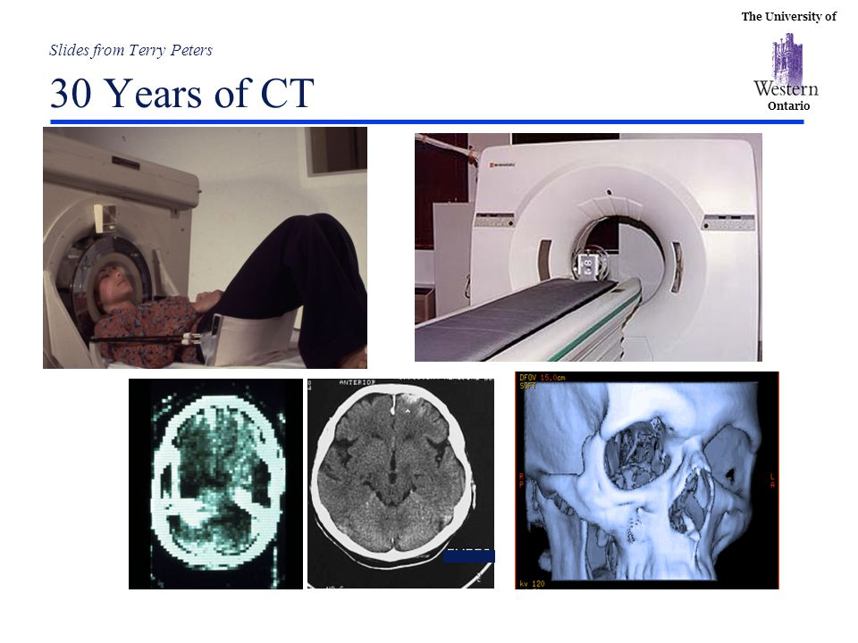 Slides from Terry Peters 30 Years of CT