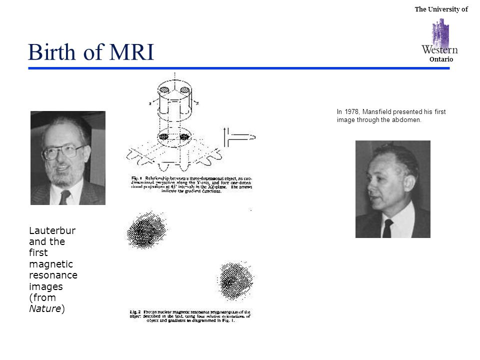 Birth of MRI In 1978, Mansfield presented his first.