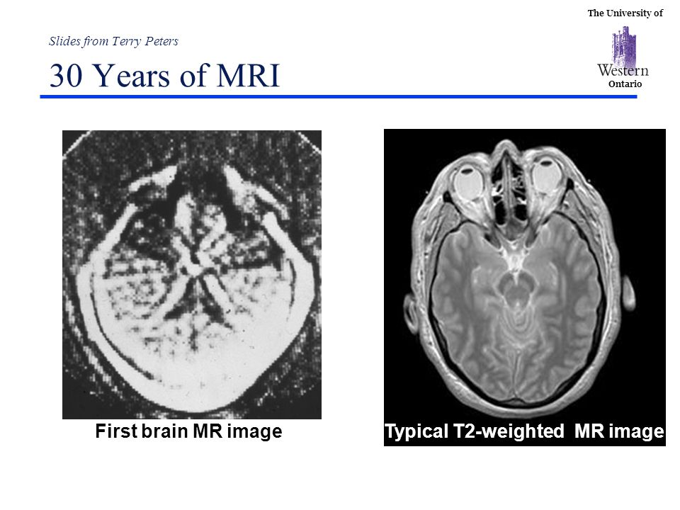 Slides from Terry Peters 30 Years of MRI