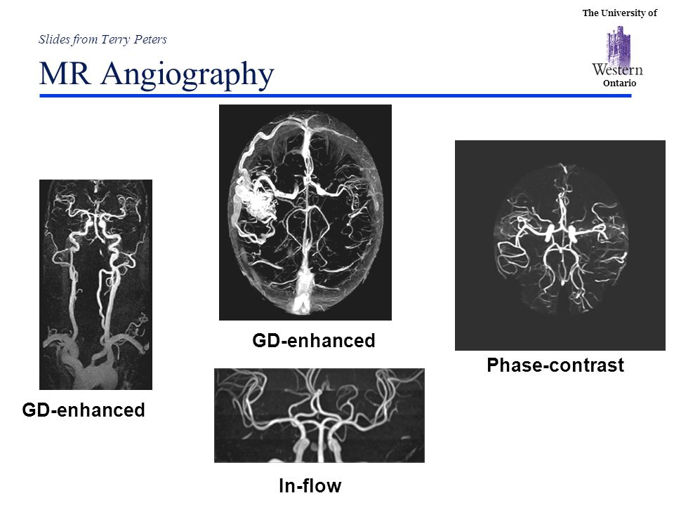 Slides from Terry Peters MR Angiography