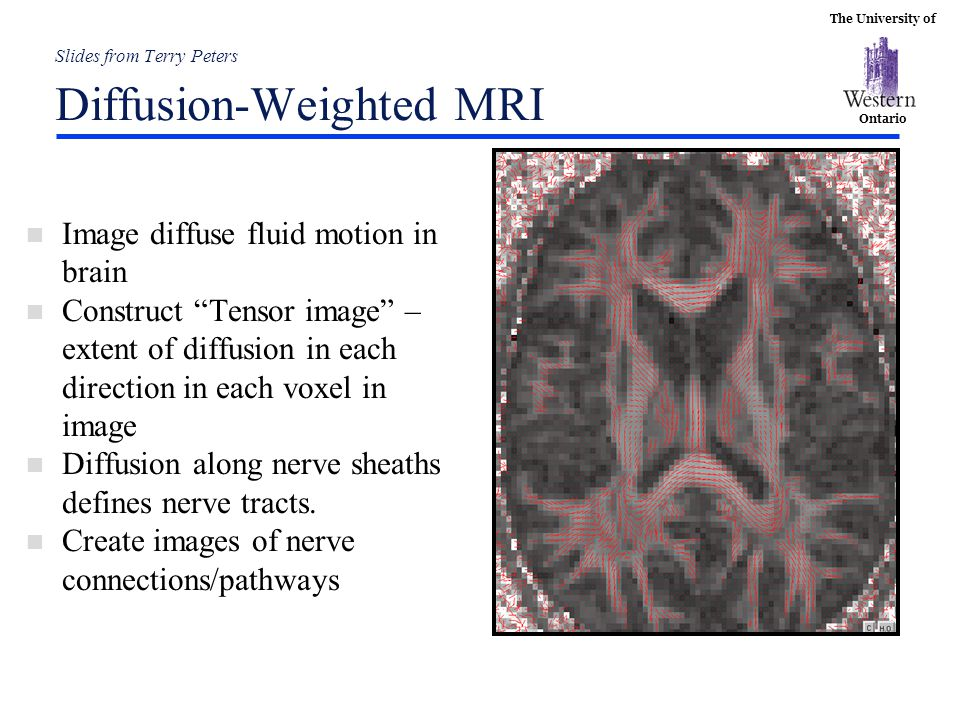 Slides from Terry Peters Diffusion-Weighted MRI