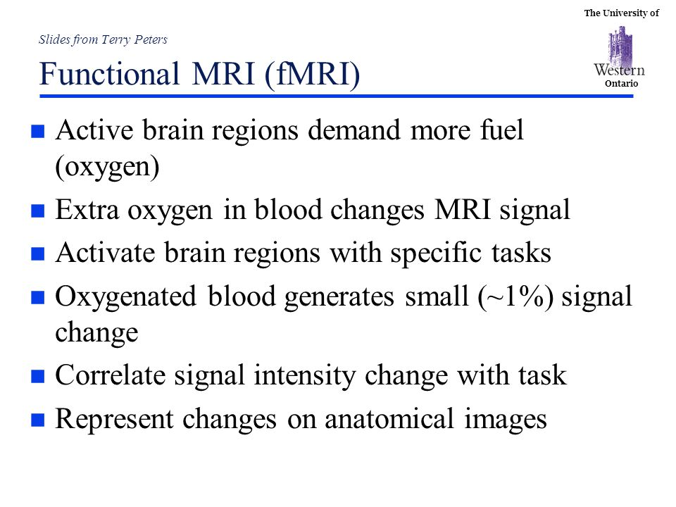 Slides from Terry Peters Functional MRI (fMRI)