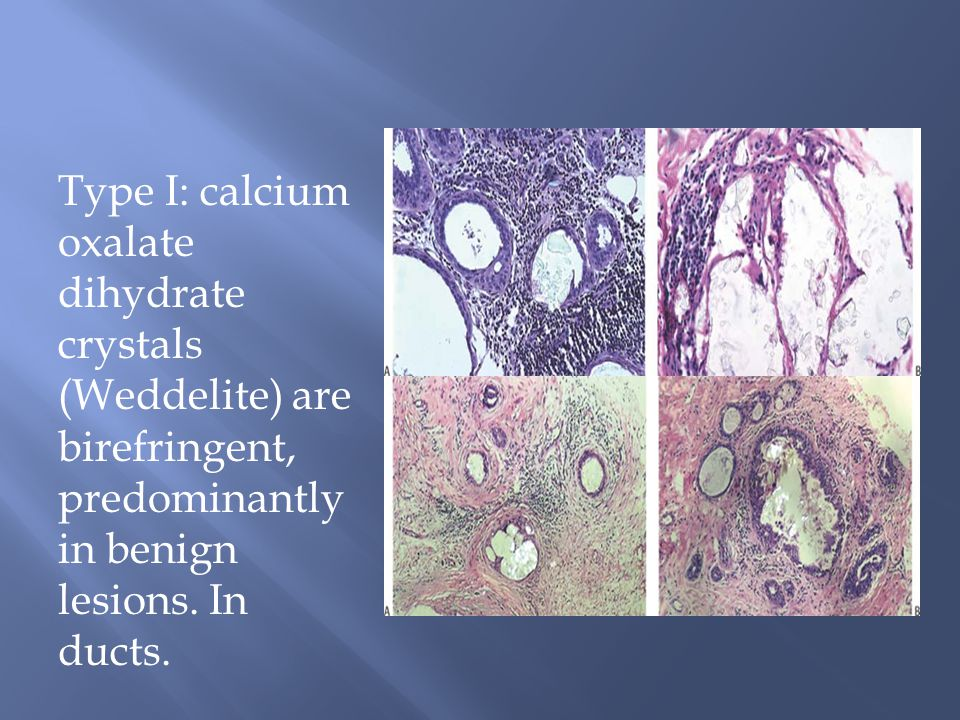 Type I: calcium oxalate dihydrate crystals (Weddelite) are birefringent, predominantly in benign lesions.