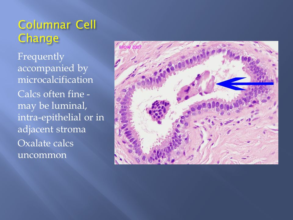 Columnar Cell Change Frequently accompanied by microcalcification