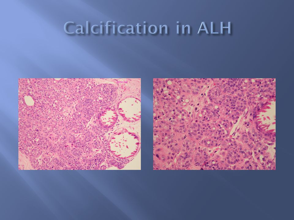 Calcification in ALH