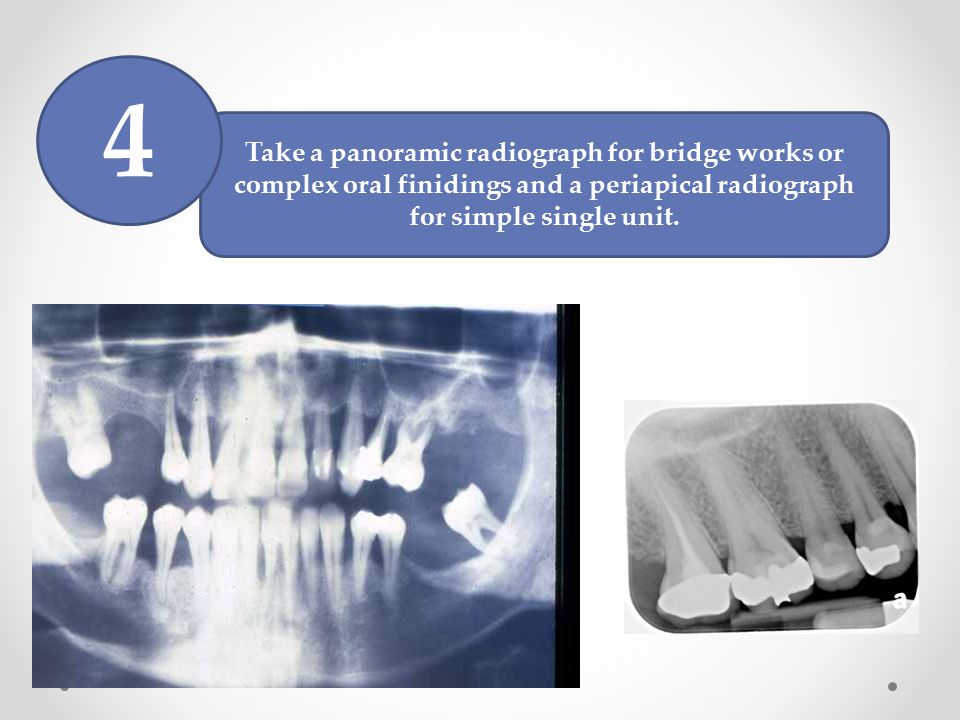 4 Take a panoramic radiograph for bridge works or complex oral finidings and a periapical radiograph for simple single unit.
