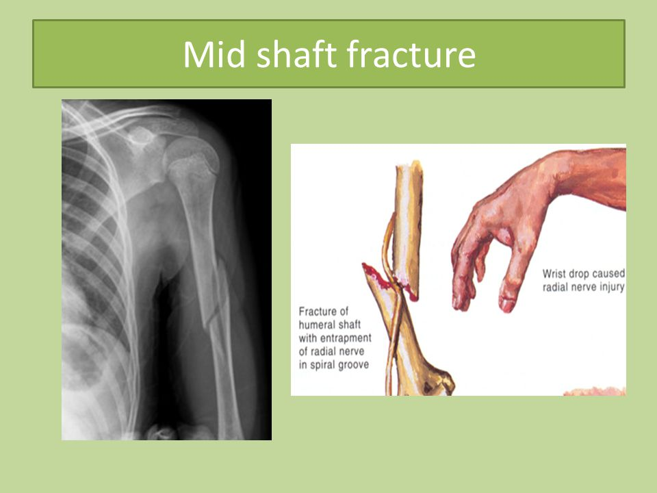 Mid shaft fracture