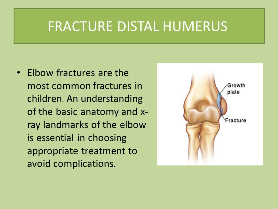 FRACTURE DISTAL HUMERUS