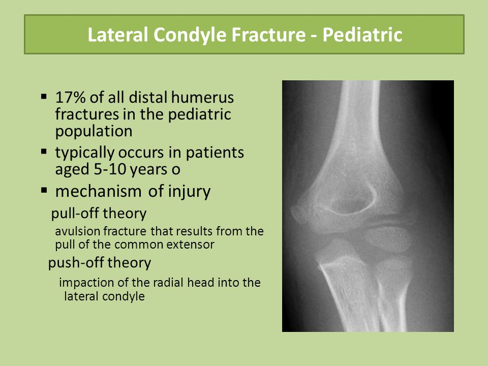 Lateral Condyle Fracture - Pediatric