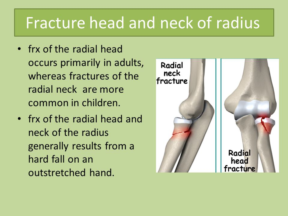 Fracture head and neck of radius