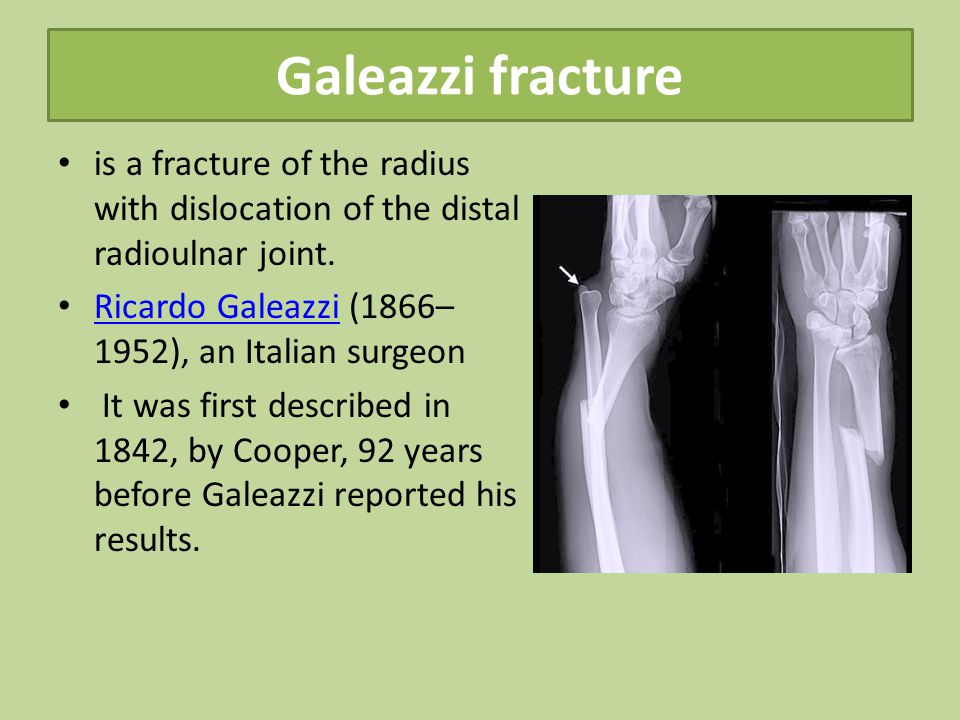 Galeazzi fracture is a fracture of the radius with dislocation of the distal radioulnar joint. Ricardo Galeazzi (1866–1952), an Italian surgeon.