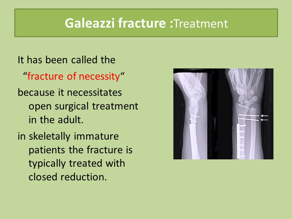 Galeazzi fracture :Treatment