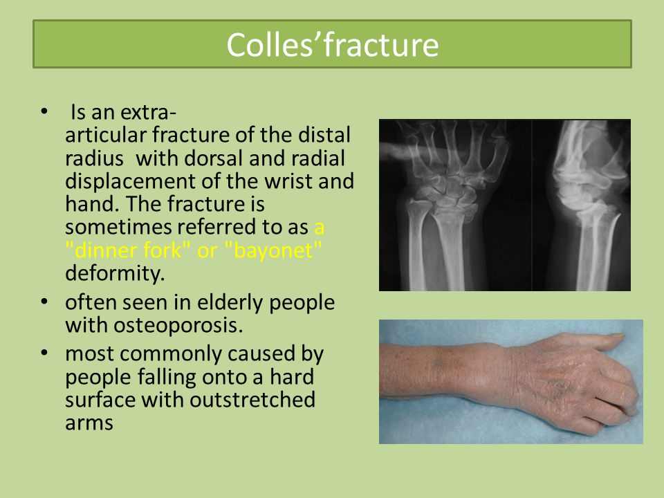 Colles'fracture