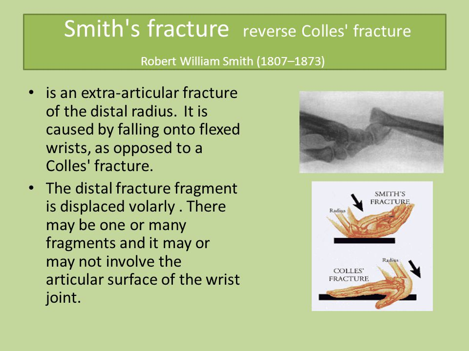 Common upper limb fractures - ppt video online download