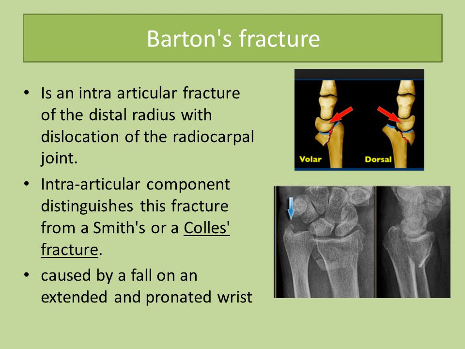 Barton s fracture Is an intra articular fracture of the distal radius with dislocation of the radiocarpal joint.