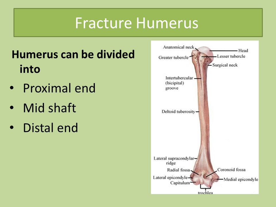Fracture Humerus Proximal end Mid shaft Distal end