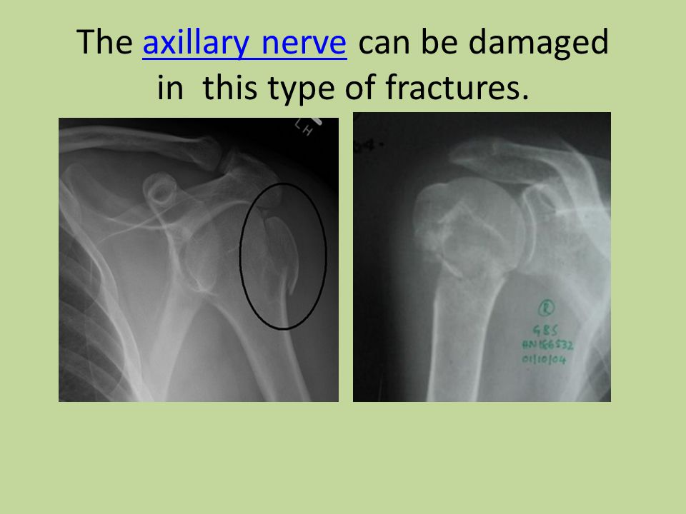The axillary nerve can be damaged in this type of fractures.