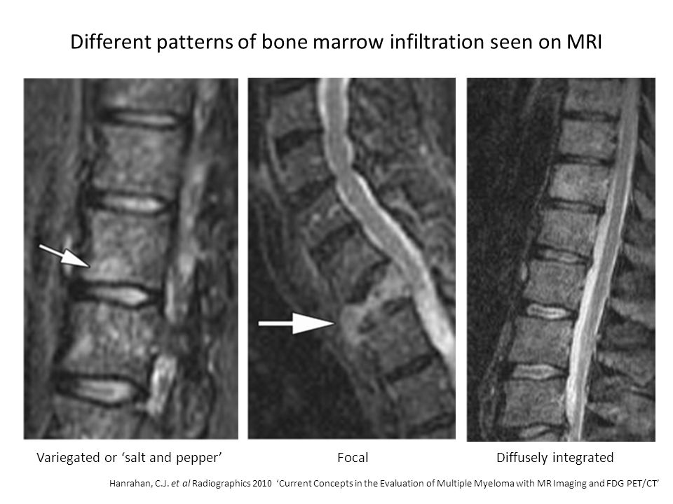 Different patterns of bone marrow infiltration seen on MRI