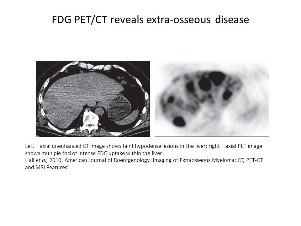 FDG PET/CT reveals extra-osseous disease