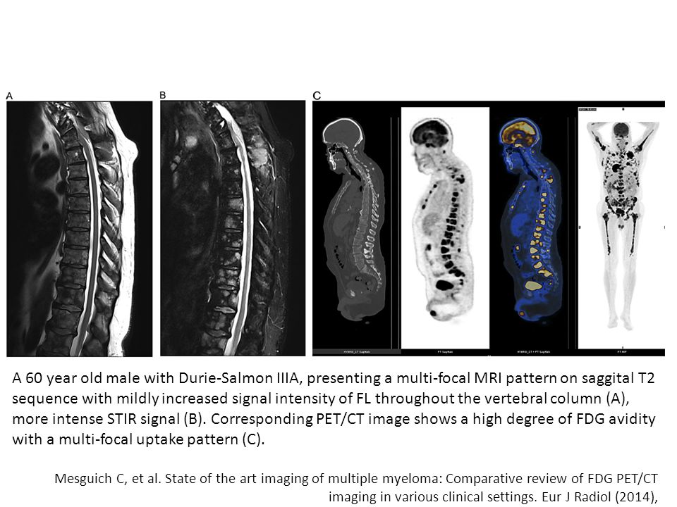A 60 year old male with Durie-Salmon IIIA, presenting a multi-focal MRI pattern on saggital T2 sequence with mildly increased signal intensity of FL throughout the vertebral column (A), more intense STIR signal (B). Corresponding PET/CT image shows a high degree of FDG avidity with a multi-focal uptake pattern (C).