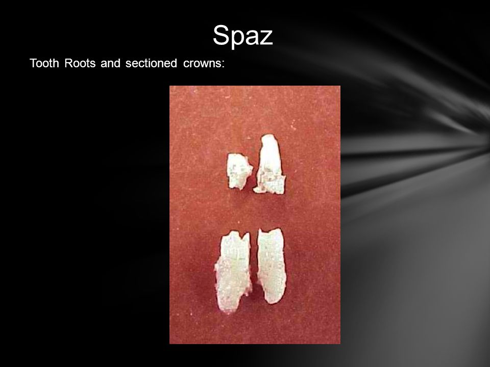 Spaz Tooth Roots and sectioned crowns: