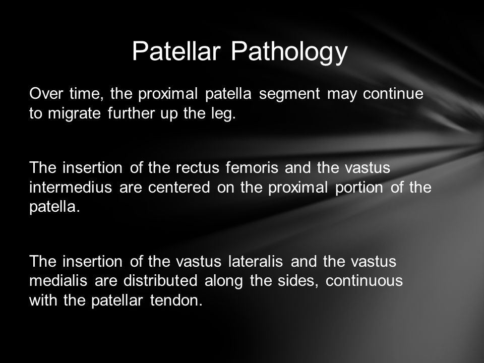Patellar Pathology Over time, the proximal patella segment may continue to migrate further up the leg.