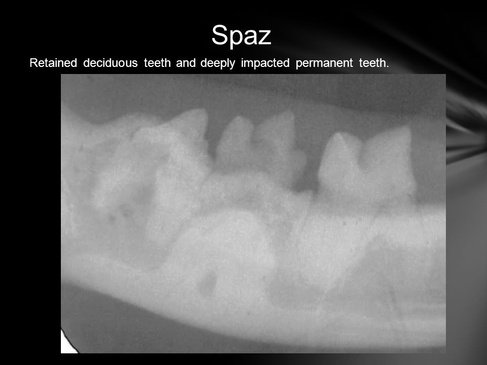 Spaz Retained deciduous teeth and deeply impacted permanent teeth.