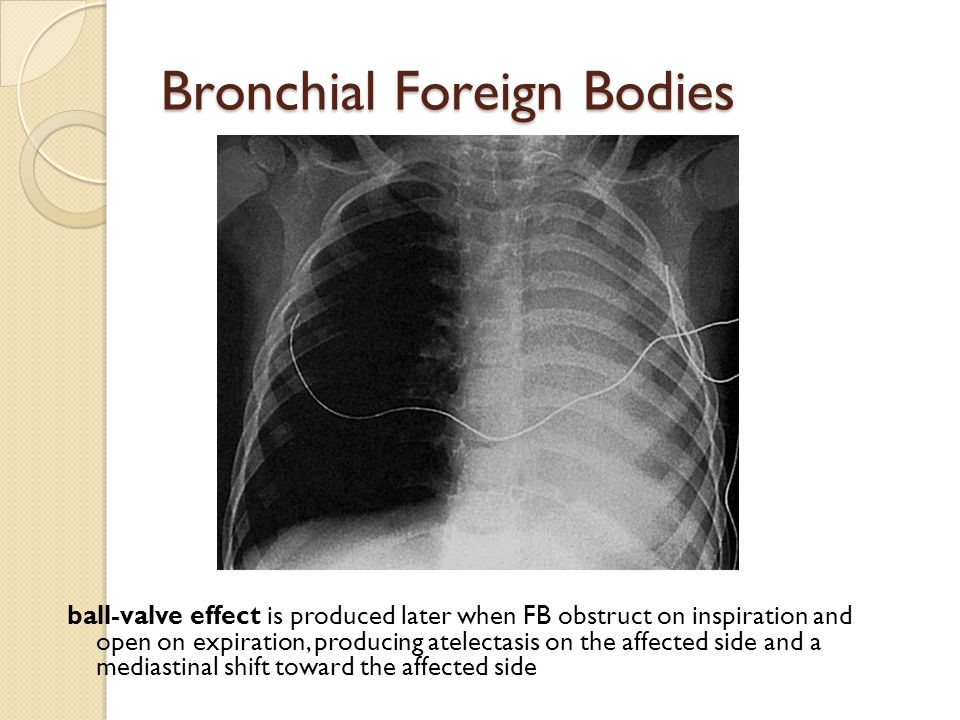 Bronchial Foreign Bodies