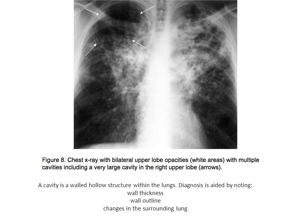 changes in the surrounding lung