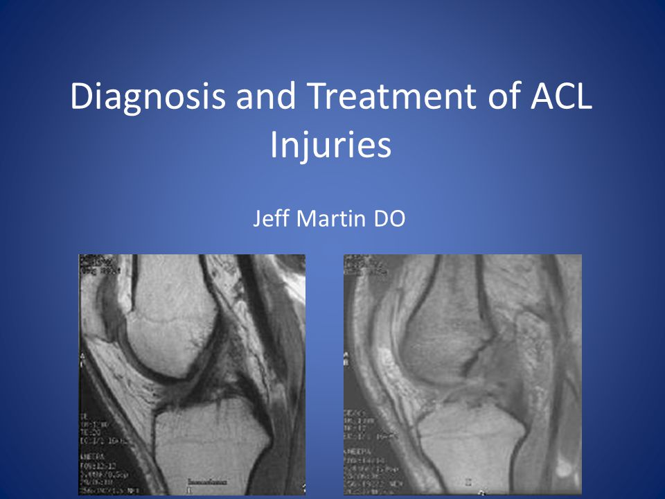 Diagnosis and Treatment of ACL Injuries
