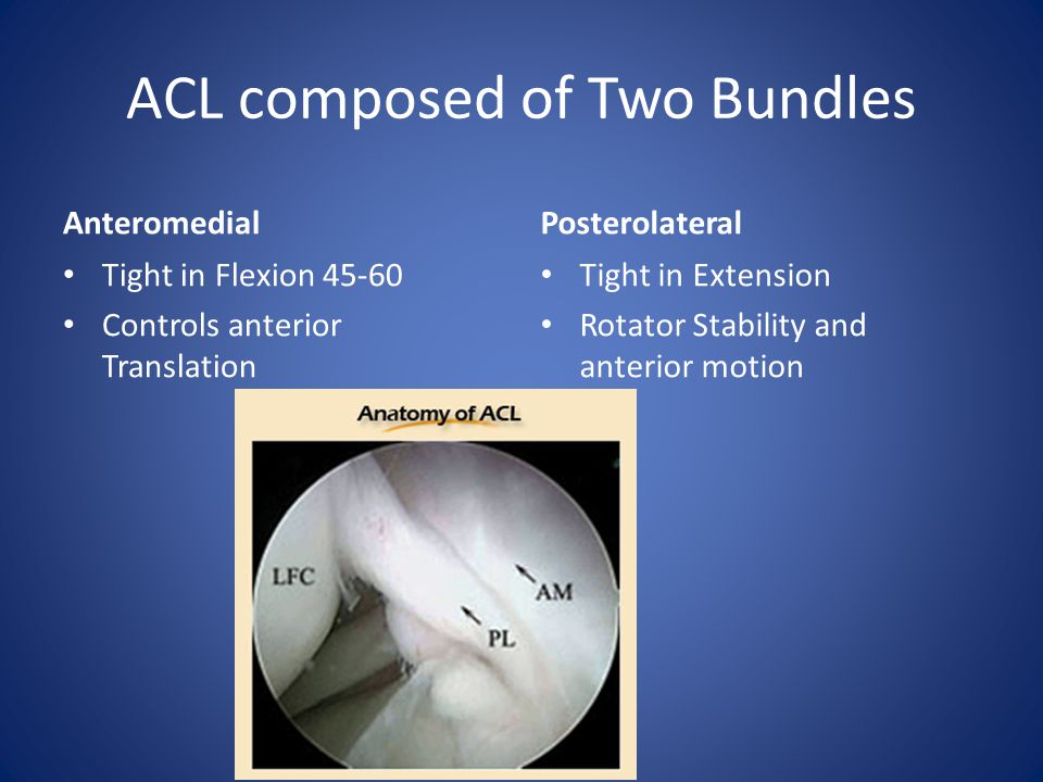 ACL composed of Two Bundles