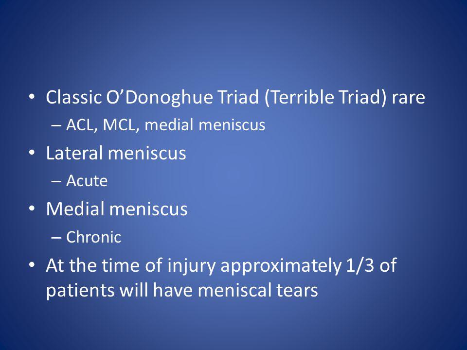 Classic O'Donoghue Triad (Terrible Triad) rare Lateral meniscus