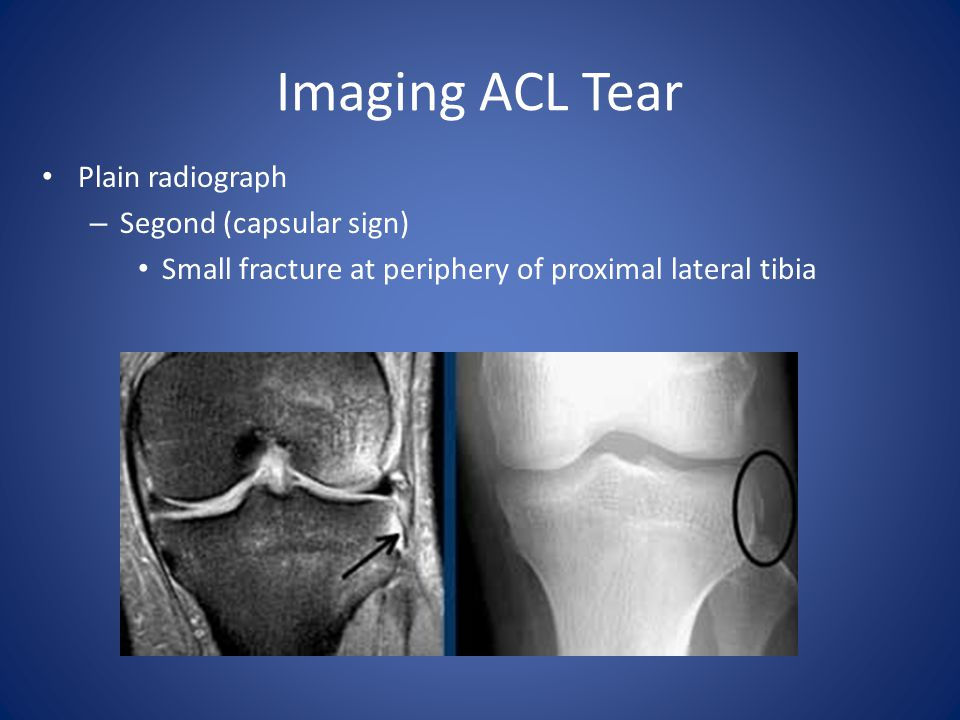 Imaging ACL Tear Plain radiograph Segond (capsular sign)
